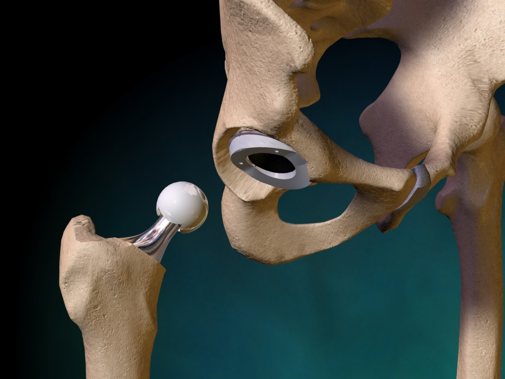 Possible Complications From Hip Replacement Surgery Bounds Law
